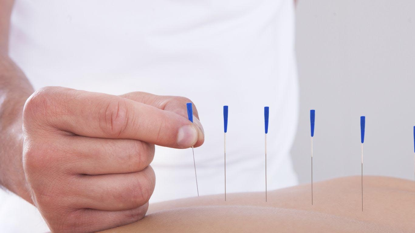 acupuncture points to cure knee pain back pain joint pain headaches digestive problem